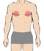 メンズ脱毛部位:乳輪周り