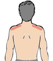 メンズ脱毛部位:両肩