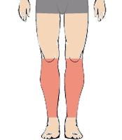 メンズ脱毛部位:両ひざ下