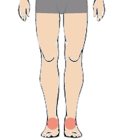 メンズ脱毛部位:足の甲