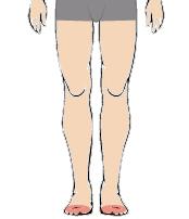 メンズ脱毛部位:足の指